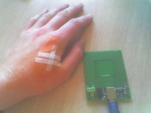 Rfid_implant_after